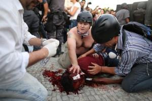 El camarógrafo Andrade Santiago es ayudado tras ser herido durante violentos choques entre policías y manifestates en Río de Janeiro el jueves, 6 de febrero del 2014. Andrade, de Banda TV, fue golpeado en la cabeza por una granada aturdidora de la policía o un explosivo casero lanzado por manifestantes. (Foto AP/